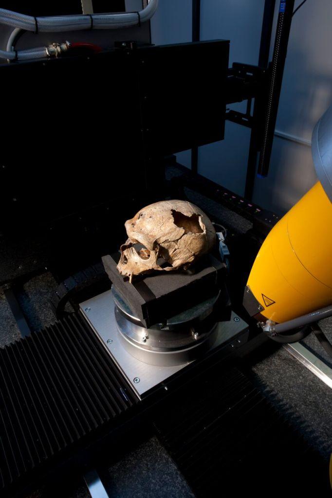 Micro-scanner de la platteforme AST-RX