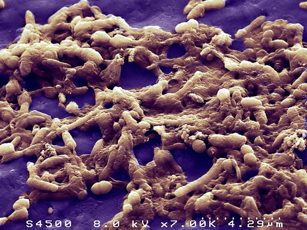 Vue en microscopie électronique à balayage d'un échantillonde matière fécale humaine montrant la diversité et l'abondancede la population bactérienne.
