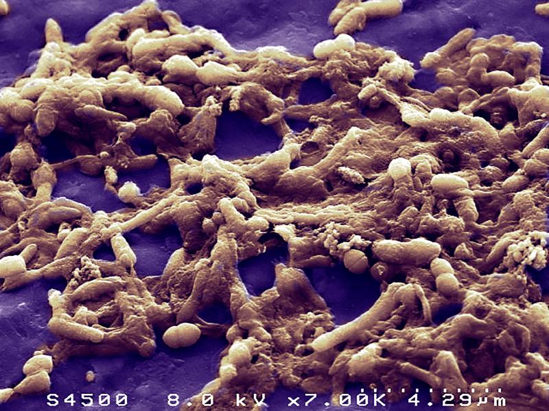 Vue en microscopie électronique à balayage d'un échantillon de matière fécale humaine montrant la diversité et l'abondance de la population bactérienne.